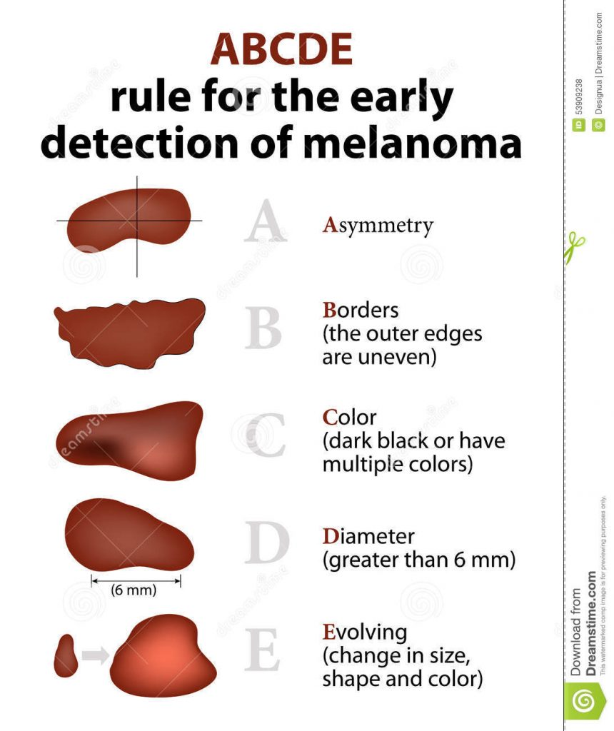 5 signs of melanoma